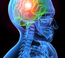 causes-and-frequency-of-concussions-in-the-us